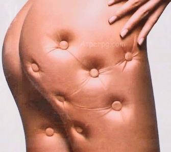 Como eliminar celulitis