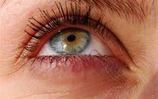 Como eliminar problemas en los ojos