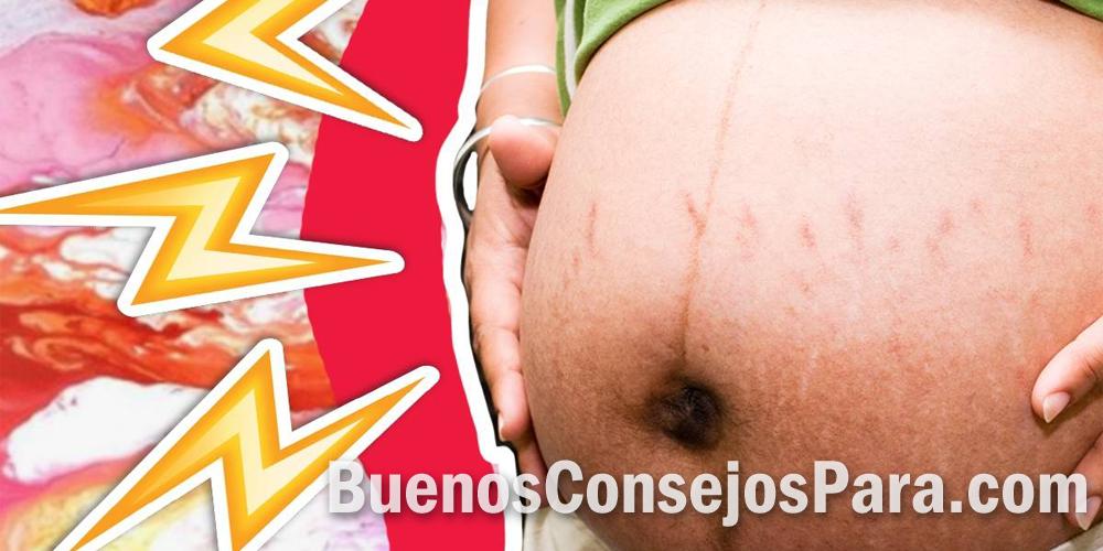 cosas que no ayudan al embarazo